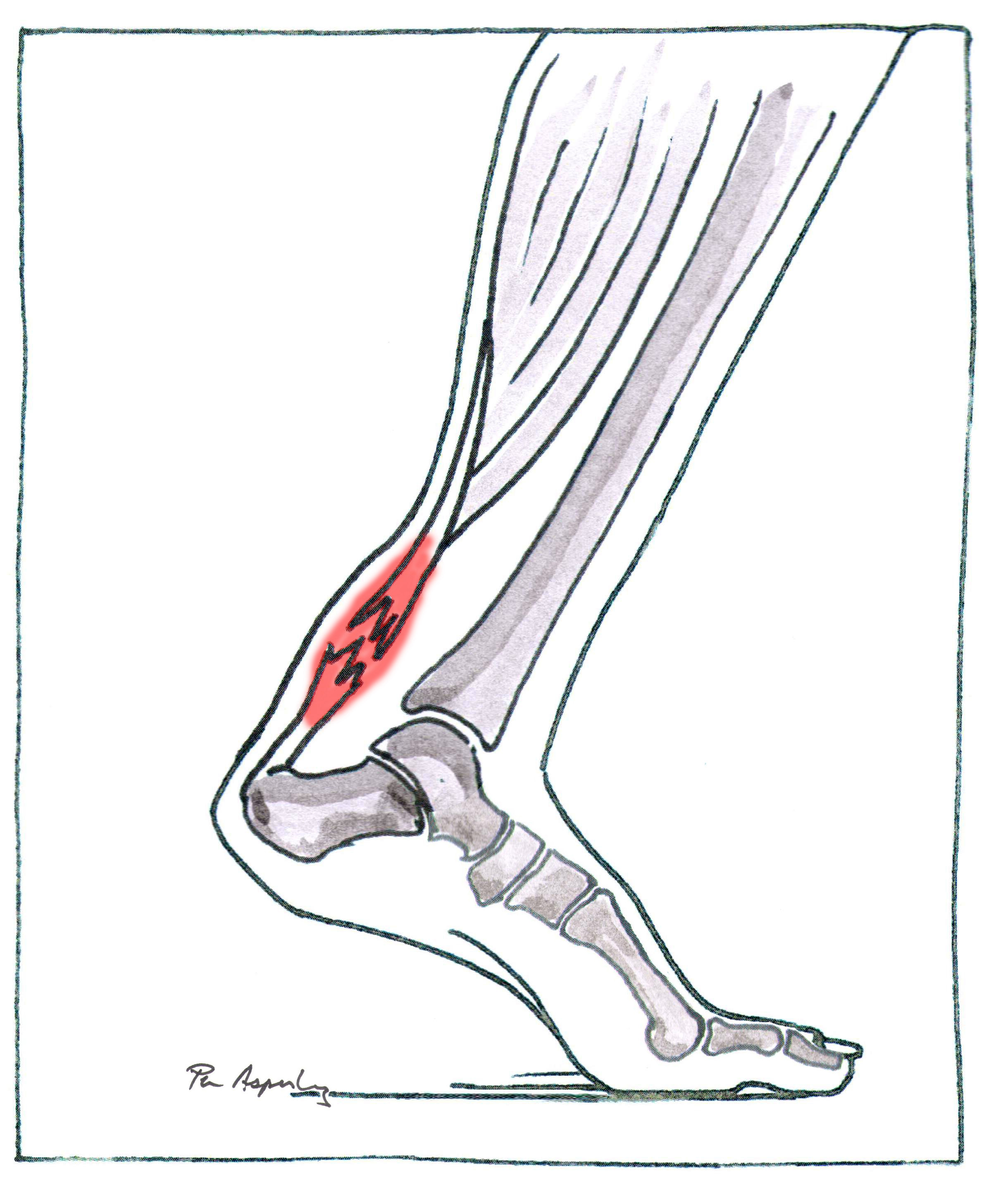 Drawing of a damaged Achilles tendon with inflammation.