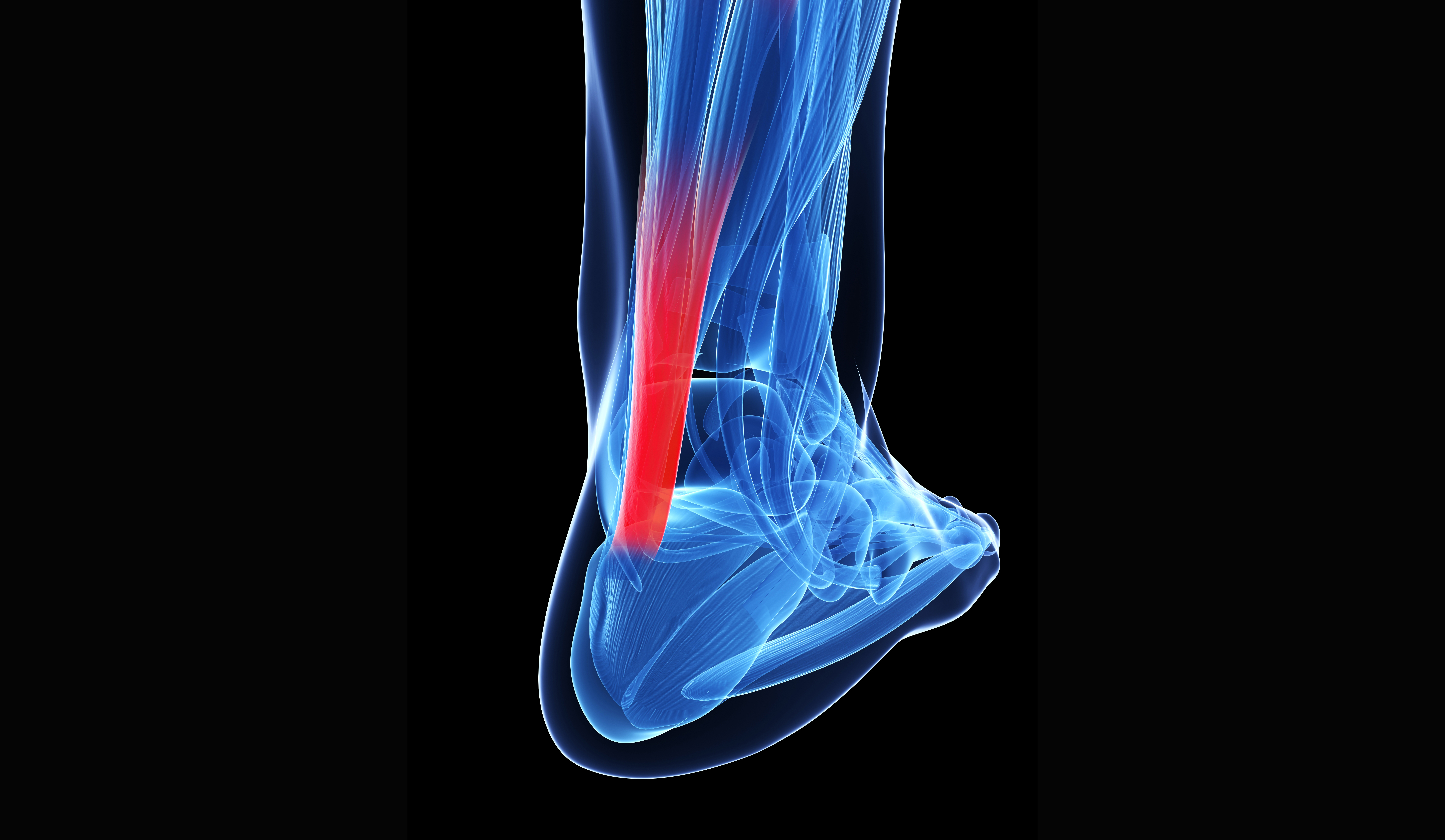 3D illustration of the achilles tendon in human foot