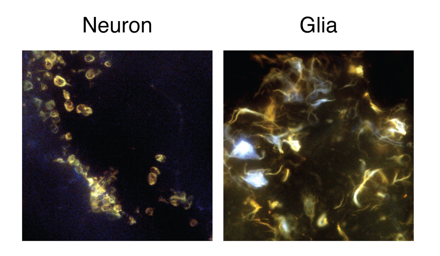 microscopy image of amyloid plaques in yellow and blue