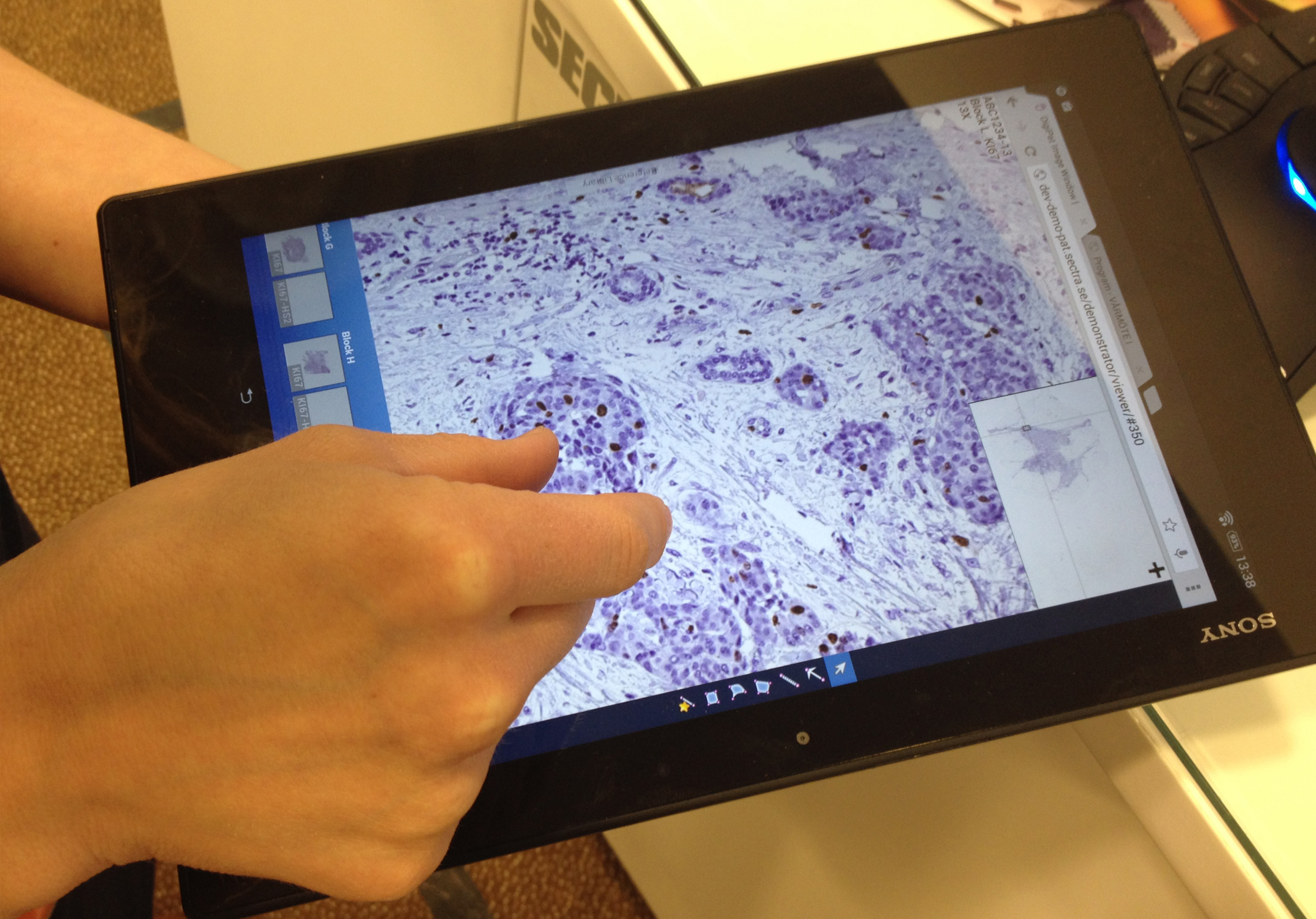 Digital pathology tissue sample view tablet