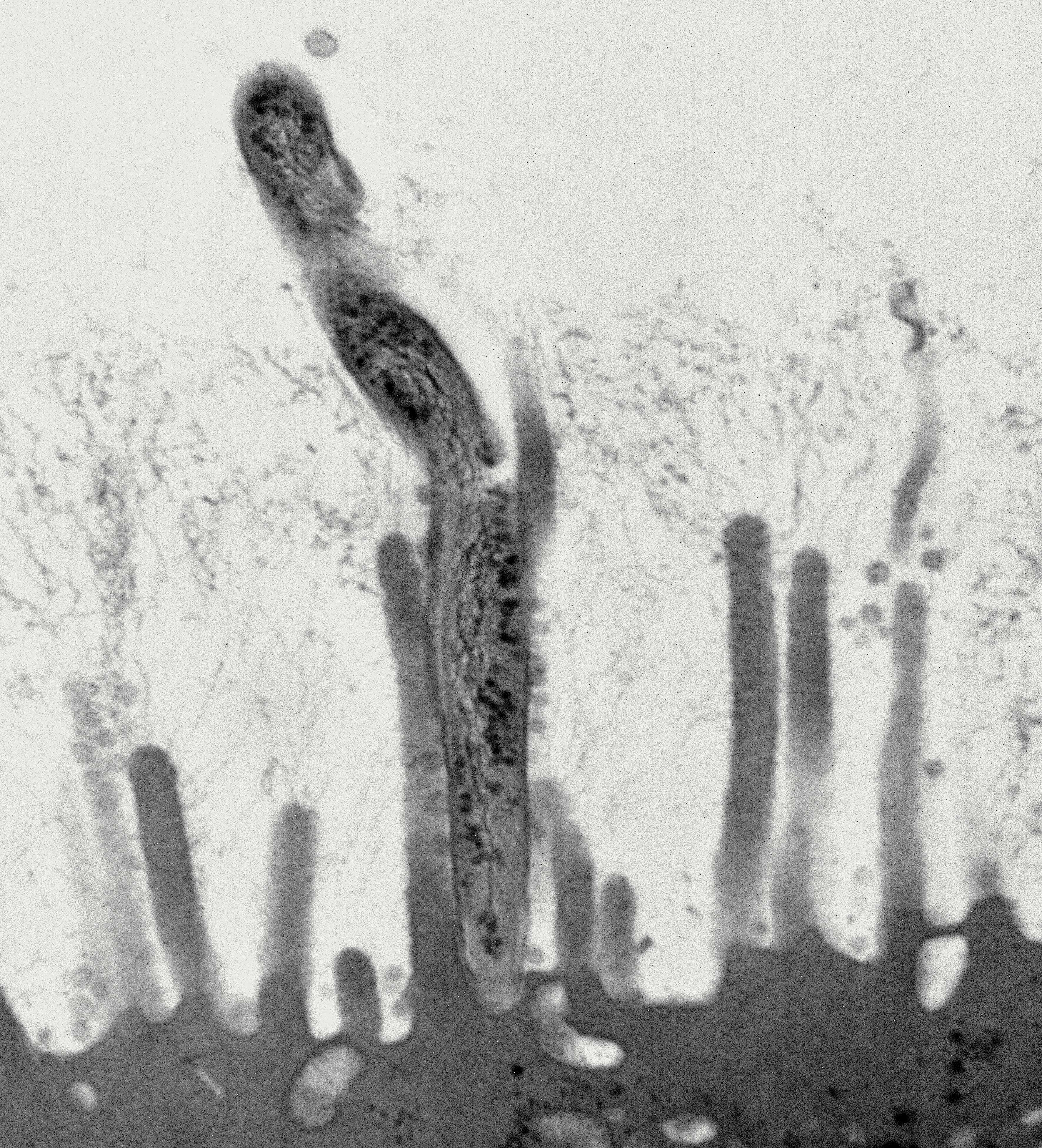 bacteria interacting with microvilli
