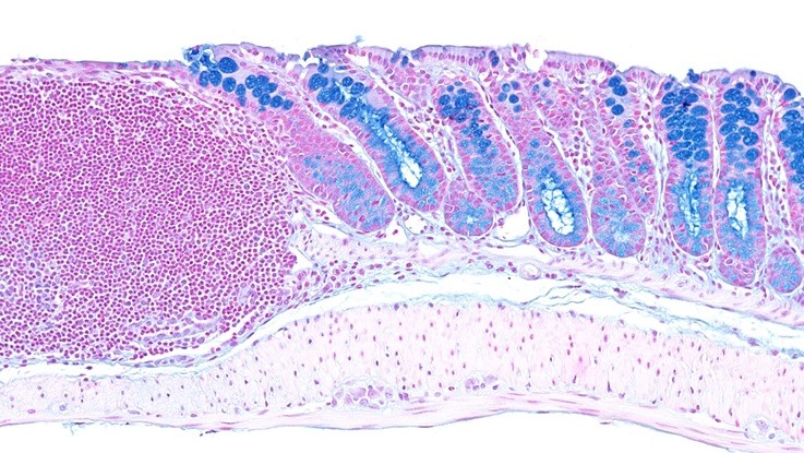 Alcian Blue / Nuclear fast red staining of mouse distal colon. Goblet cell mucins appear in blue. A large lymphoid aggregate can be seen on the left.