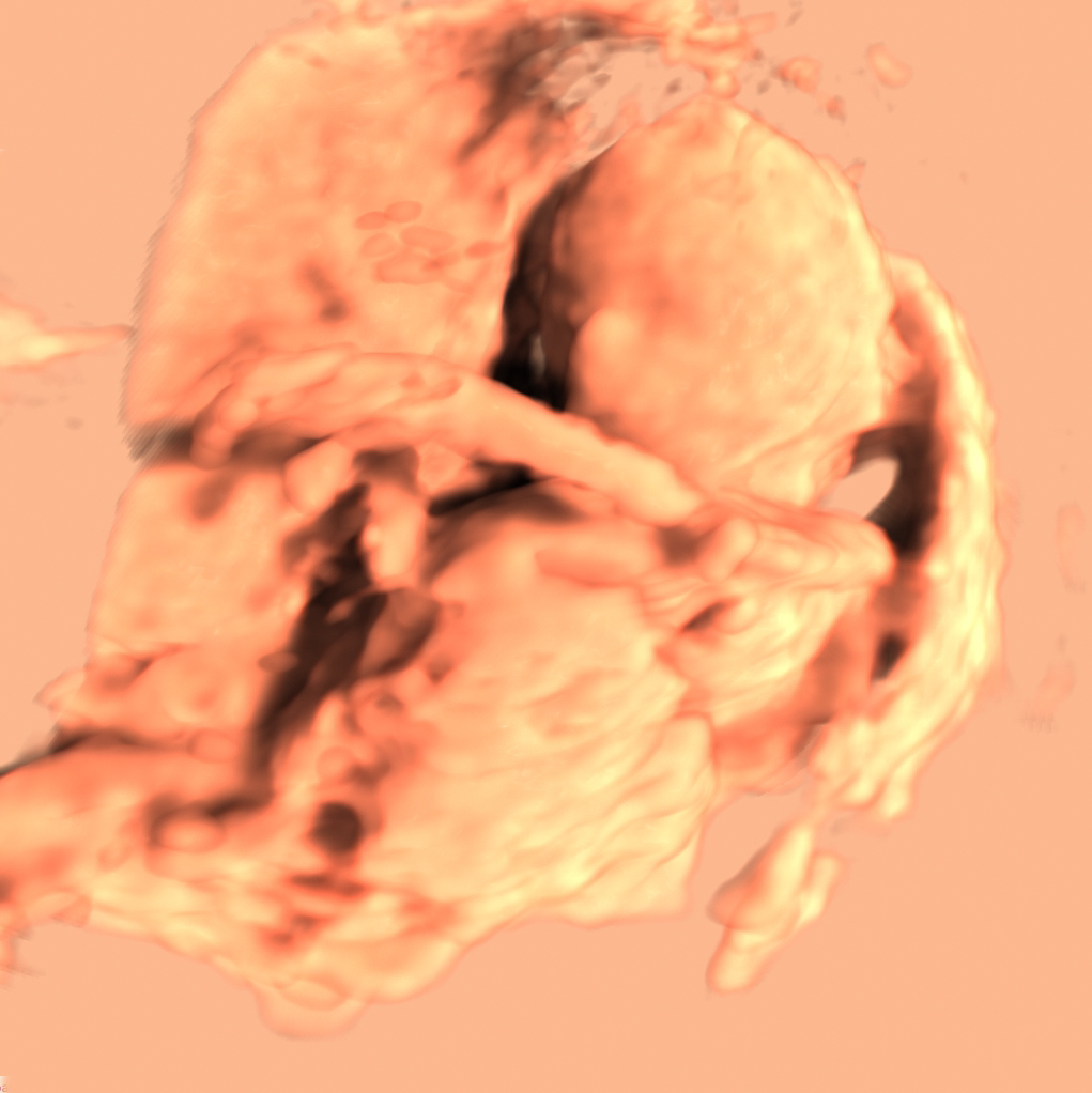Human organ. scanned