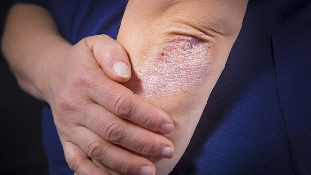 Psoriasis on an elbow