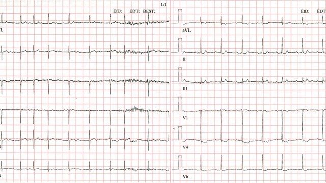 ECG curve with atrial fibrillation and sinus rhythm, respectively