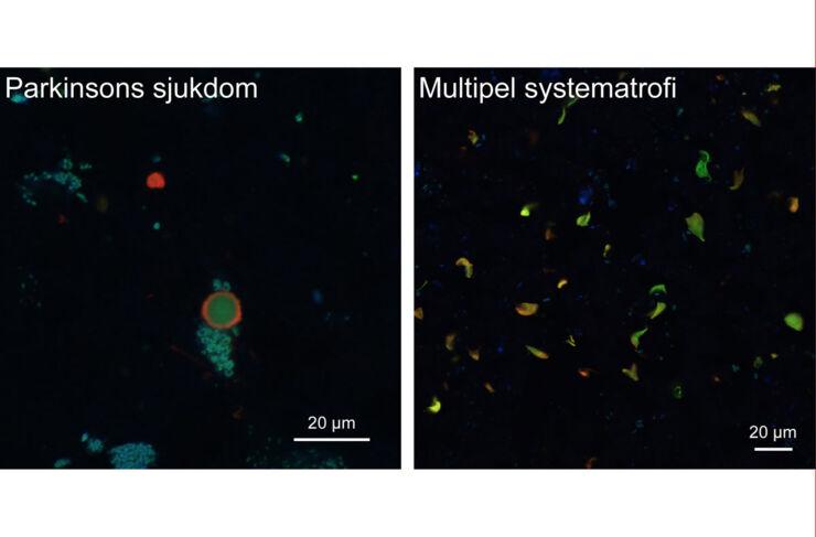 Aggregat av alfa-synuklein i celler i mänsklig hjärnvävnad som färgats in med spårarmolekyl (grön) och antikropp mot alfa-synuklein (röd). Den turkosa eller blå färgen kommer av ett annat ämne (lipofuscin) som ansamlas i åldrande hjärnceller, men som inte har någon betydelse för studiernas resultat.